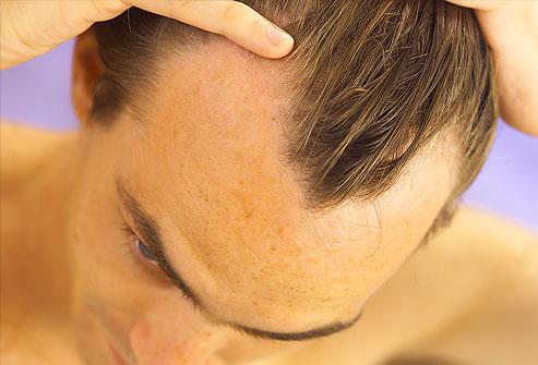 hair-loss-frontal
