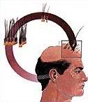 Saç Cerrahisinde 2 Etkili Yöntem