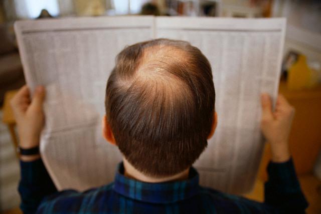 Kimler Saç Ekimi Yaptıramaz